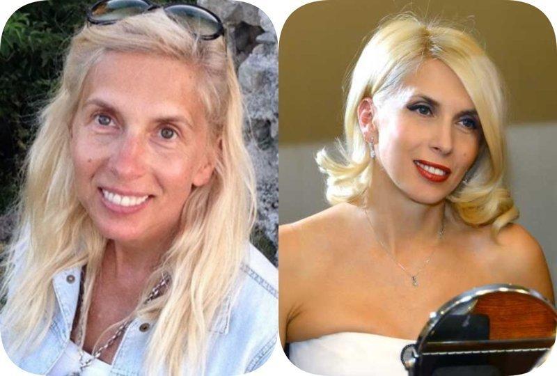 11. А вот Алена Свиридова, которой уже 55 лет, с умом использует уколы красоты до и после пластики, звезды, знаменитости, косметологи звезд, филлеры, фото