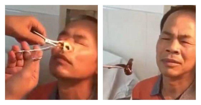 Из носа китайца извлекли огромную пиявку: видео Пиявка, видео, заражение, китай, ужасы