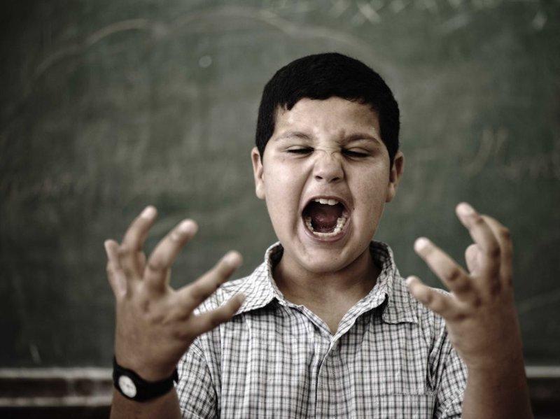 8. Синдром чужой руки болезни, наука, синдромы