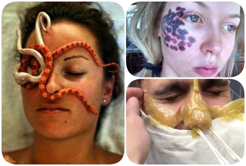 Адские косметические процедуры, от которых волосы дыбом косметология, кошмар, процедуры, спа-процедуры, тренды красоты, ужас, фото