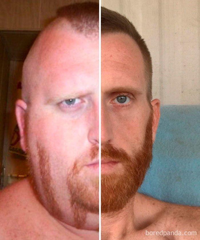 Наглядно: до и после похудения на 100 кг до и после, лишний вес, люди, мотивация, спорт, тогда и сейчас, трансформации, фото