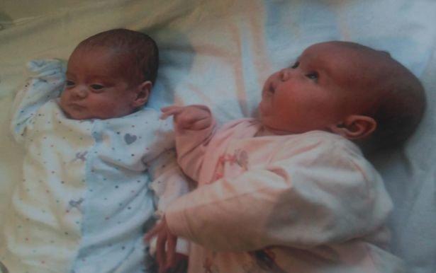 Уникальные двойняшки родились с разницей в 87 дней беременность, врачи, двойняшки, дети, истории, мать и дитя, рождение, трогательно