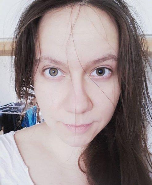 5. Анизокория альбиносы, аномалии, генетика, необычная внешность, цвет кожи