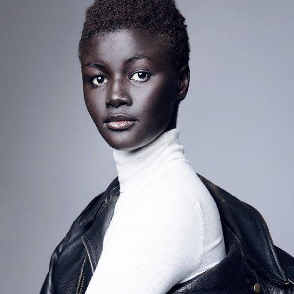 7. Худия Диоп альбиносы, аномалии, генетика, необычная внешность, цвет кожи