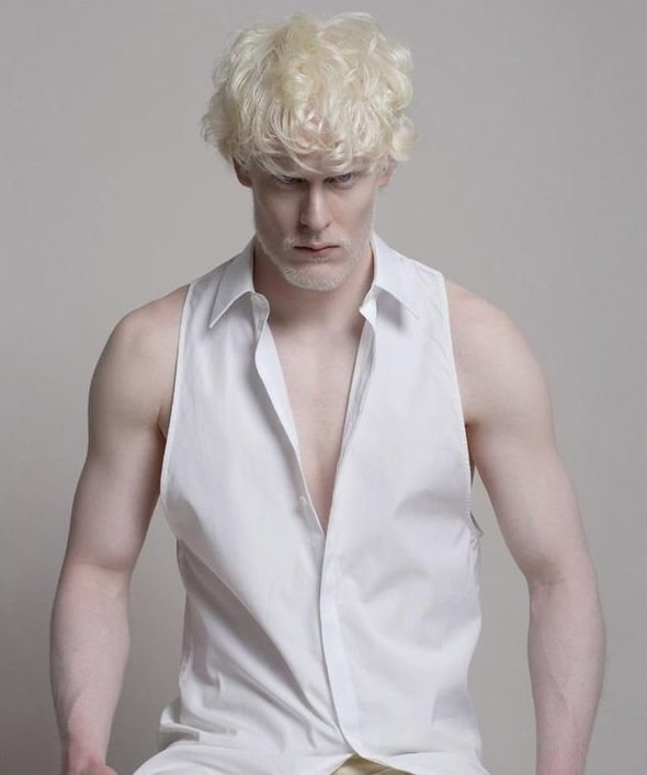 18. Стивен Томпсон альбиносы, аномалии, генетика, необычная внешность, цвет кожи