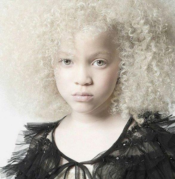 1. Альбиносы альбиносы, аномалии, генетика, необычная внешность, цвет кожи