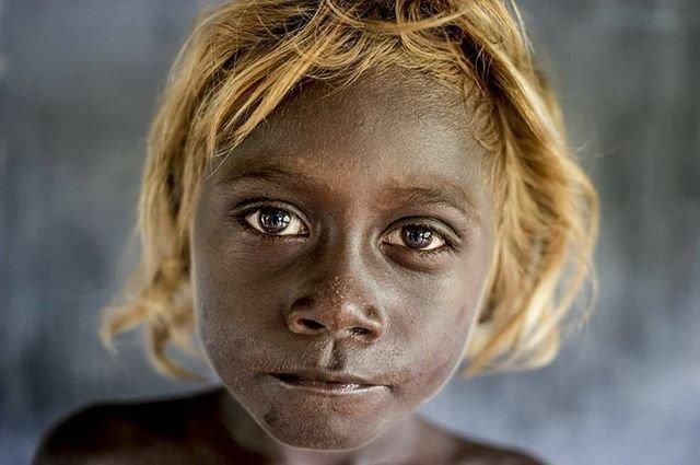 4. Аборигены Соломоновых островов альбиносы, аномалии, генетика, необычная внешность, цвет кожи