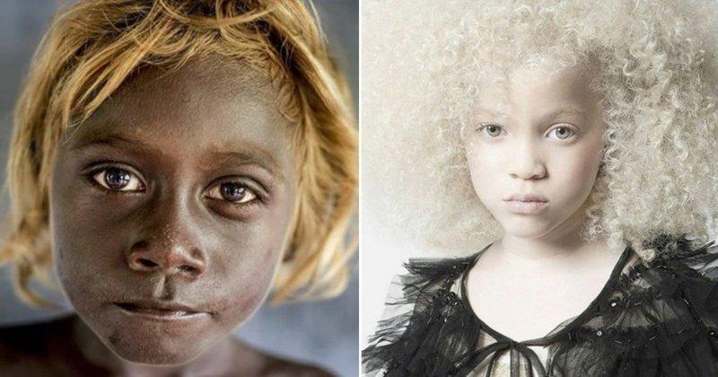 20 фотографий людей, которых вселенная наградила поистине нестандартной внешностью альбиносы, аномалии, генетика, необычная внешность, цвет кожи