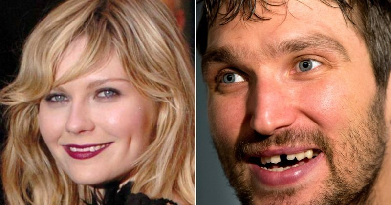 Оральный беспредел: знаменитости, о которых мечтает каждый стоматолог знаменитости, овечкин, стандарты красоты, стоматолог, улыбка