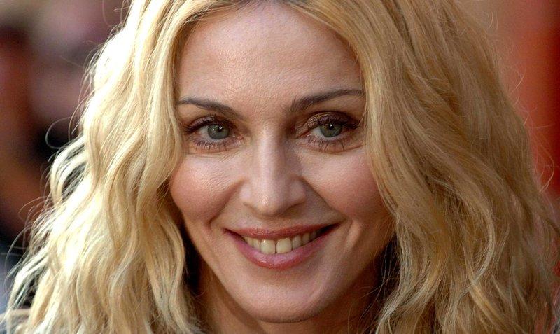 10. Мадонна знаменитости, овечкин, стандарты красоты, стоматолог, улыбка