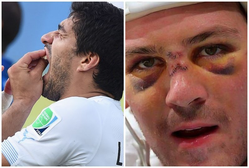 3. Пусть футболисты расскажут, как больно терять зубы симулянты, симуляция в футболе, смешные гифки, футбол, хоккей