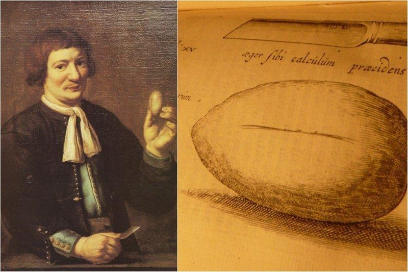1. Жан де Дут - открытая цистолитотомия в мире, жизнь, история, люди, операция, счастливчики