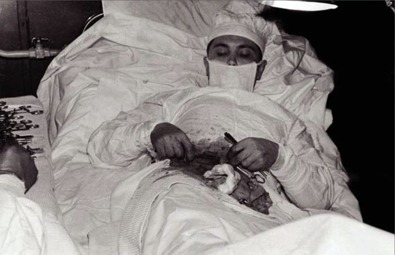 6. Леонид Рогозов - аппендэктомия в мире, жизнь, история, люди, операция, счастливчики