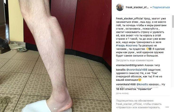 "Кирилл ""Руки-базуки"" обзавёлся ещё и ""икрами-ракетами"" ynews, кирилл терёшин, пластика, руки-базуки, синтол, терёшин, фото"