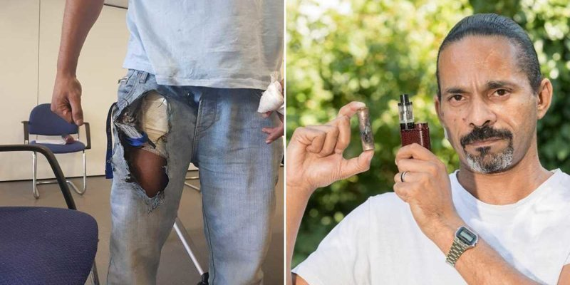 Взорвавшаяся электронная сигарета едва не кастрировала отца 6 детей в мире, взрыв, история, люди, электронная сигарета