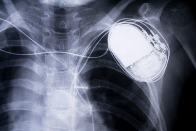 3. Кардиостимулятор в мире, изобретение, интересное, подборка, познавательно, технологии, факты