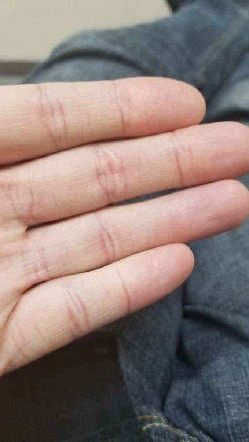 Сустав указательного пальца без складок кожи на верхней костяшке забавно, интересно, необычно, редкости, рукотворные чудеса, странные вещи, удивительное рядом, чудеса природы