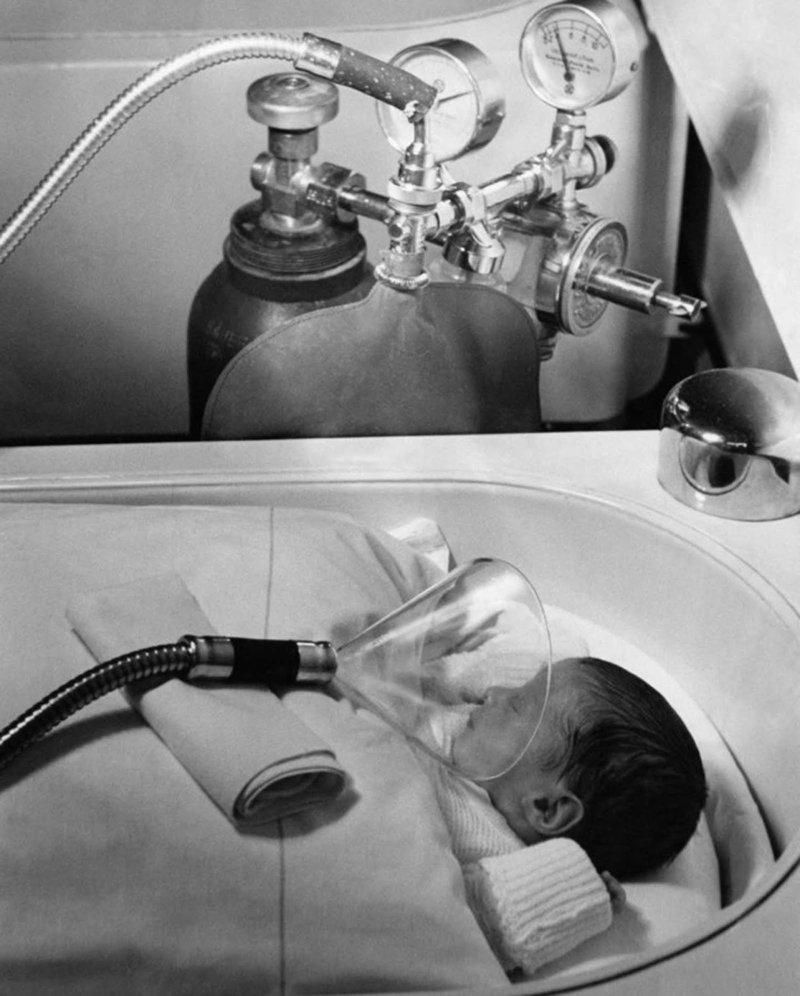 2. Кислородная маска для новорожденного в Берлине, 1939 год изобретения, исторические фото, медицина, медицина прошлого, оборудование, рентгеновский аппарат, фото