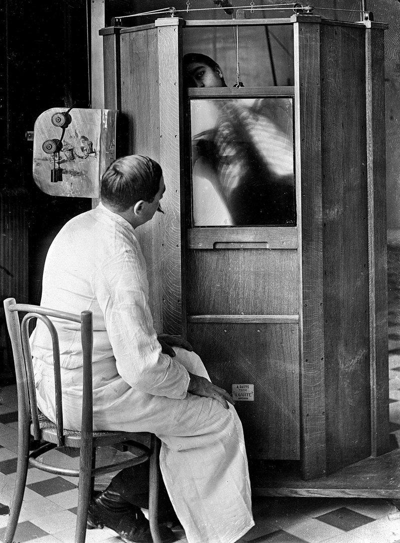 1. Рентгенограмма грудной клетки в Париже в 1914 году изобретения, исторические фото, медицина, медицина прошлого, оборудование, рентгеновский аппарат, фото