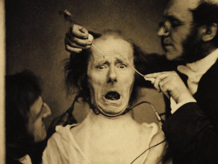 5. Французский невропатолог Гийом Дюшен в 1860-х проводил исследования выражений лица человека, воздействуя на своих пациентов электрическим током. Его медицинские эксперименты стали первыми в мире, запечатленными на камеру. Жуткие фото, жутко, интересно, исторические фото, история, необъяснимое, редкие фото, фото