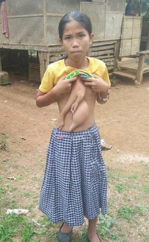 Филиппинской школьнице удалят лишние руки, растущие из живота Вероника Комингез, врачи, лишняя пара рук, медицина, операция, уродство, филиппины, шок