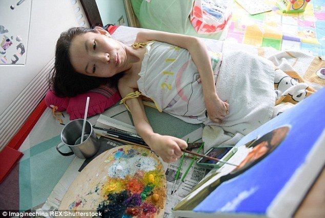 Пальцы художницы с трудом удерживают кисть болезнь, жажда жизни, инвалид, картины, китай, сила духа, художница, художница-инвалид
