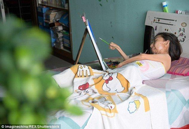 И она живет болезнь, жажда жизни, инвалид, картины, китай, сила духа, художница, художница-инвалид