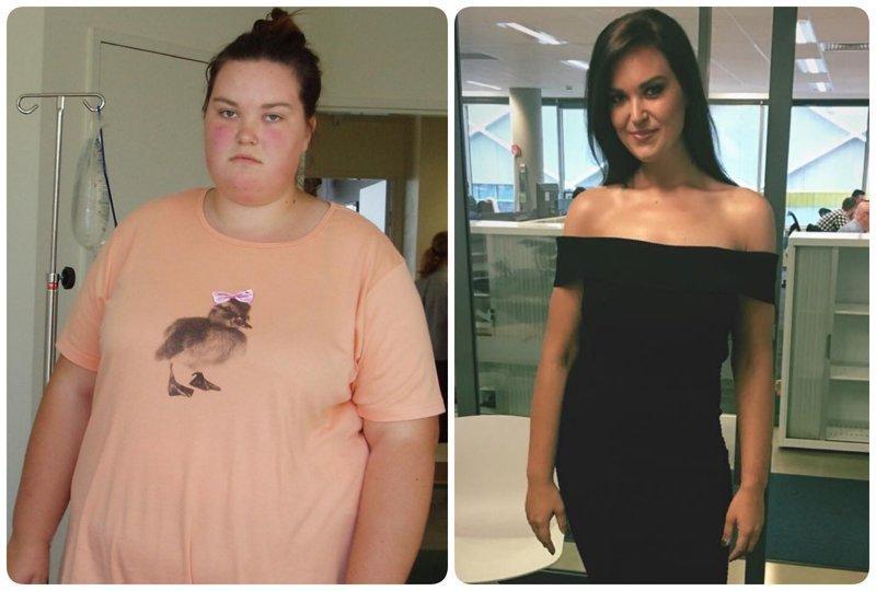 8. 25-летняя Джессика 7 лет назад и сегодня. Конечно, она сейчас проходит через пластические операции, избавляющие ее от лишней кожи, но она явно довольна жизнью диета, до и после, до и послу похудения, трансформация, фото