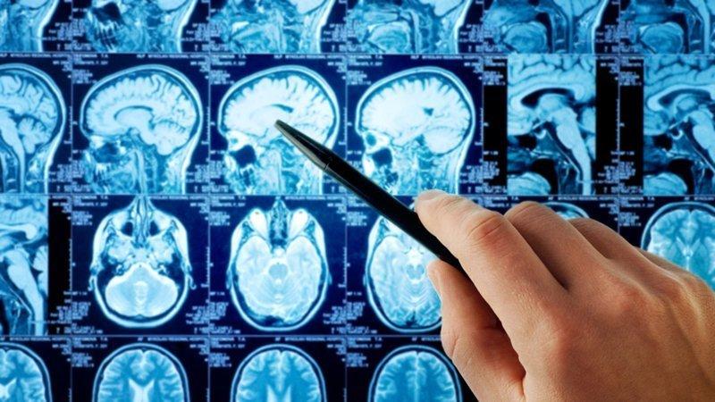 5. Вы можете изменить свой мозг. Буквально. Физически истории, мозг, наука, тренировка мозга