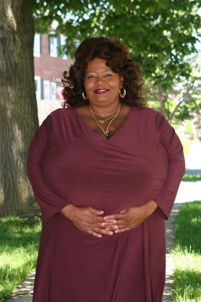 Как живёт женщина, чьи груди весят 50 килограмм ynews, Большая грудь, грудь, жизнь, интересное, необычные люди, фото