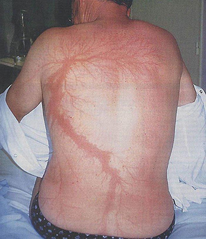 Около 90% людей после удара молнией выживают, но на их телах остаются специфические шрамы, которые не спутать ни с чем интересно, молния, познавательно, разряд молнии, удар молнии, физика, шрам от молнии, шрамы