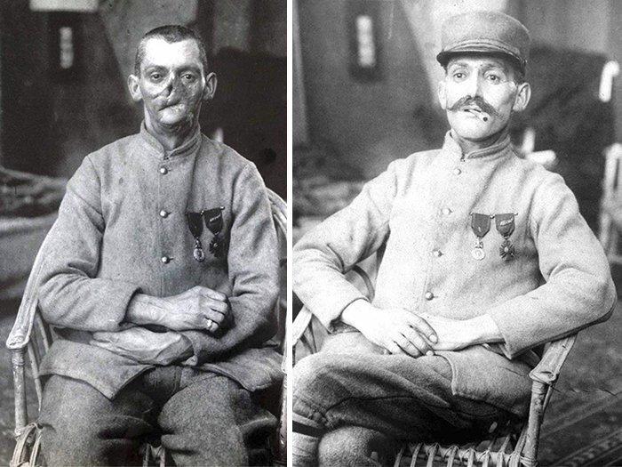 У некоторых несчастных лица были настолько изуродованы, что от них почти ничего не осталось история, маска, маска для лица, первая мировая война, протез, ранения, скульптор, травмы