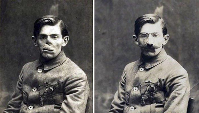 """Этих людей называли """"самыми трагическими из всех жертв войны"""" - ведь большинство из них были обречены на жизнь в полном одиночестве история, маска, маска для лица, первая мировая война, протез, ранения, скульптор, травмы"""