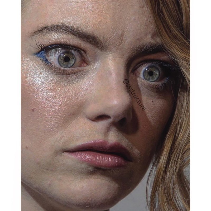 6. Эмма Стоун без макияжа, без фотошопа, звезды вблизи, знаменитости, фото вблизи