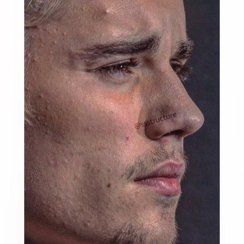 4. Джастин Бибер без макияжа, без фотошопа, звезды вблизи, знаменитости, фото вблизи