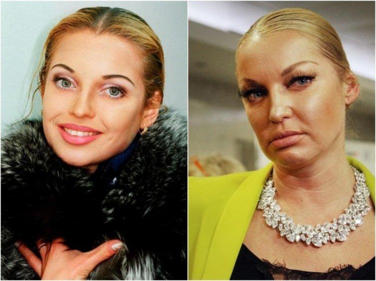 Анастасия Волочкова, 42 года внешность, возраст, звезды, знаменитости, красота