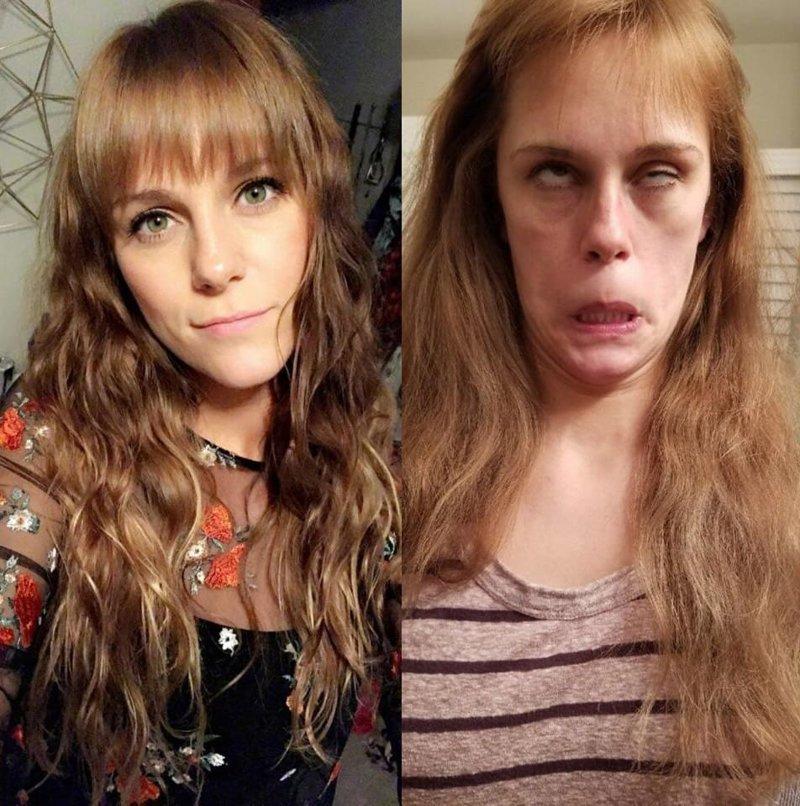 Фотографии до и после, просматривая которые сложно поверить в то, что на них одна и та же девушка девушки, до и после, красота, лицо, мимика, подборка