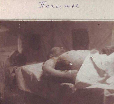 Красноармеец с пробившей плечо миной на операционном столе. Ленинградский фронт, 1942 г. Великая отечественая война, архивные фотографии, вторая мировая война