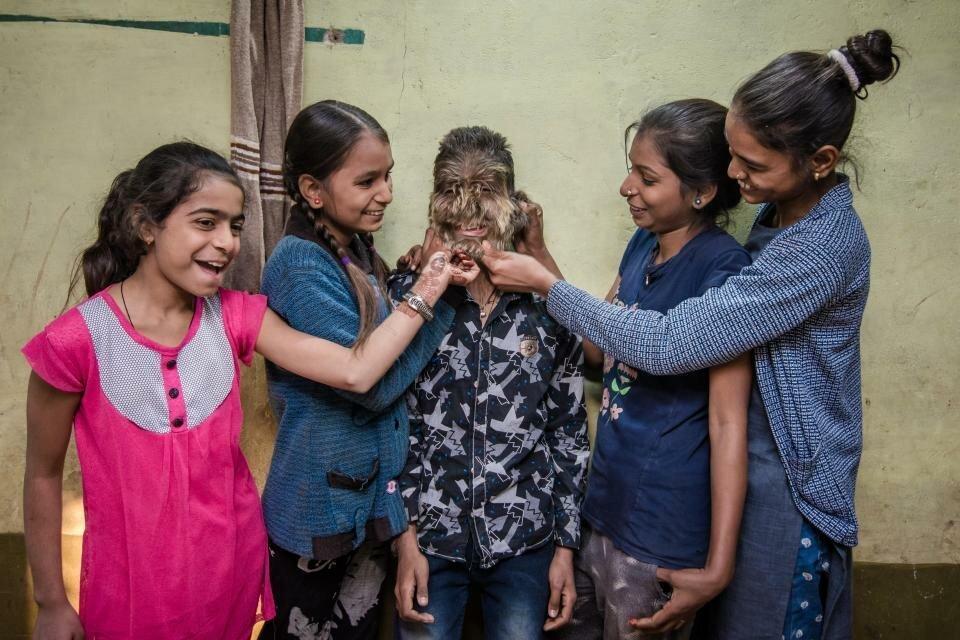 Живой оборотень: Лицо 13-летнего мальчика с редким заболеванием покрыто волосами