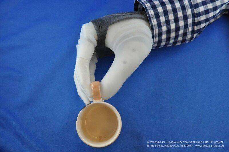 Ученые впервые подключили протез руки напрямую к нервам человека