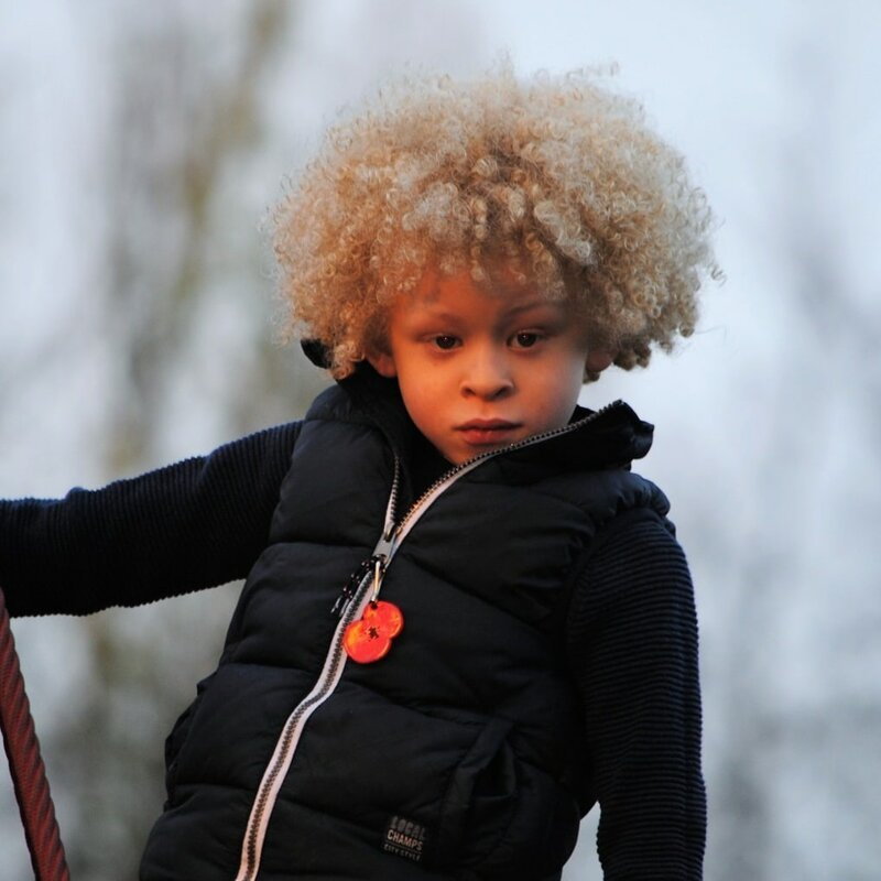 5-летний мальчик-альбинос стал моделью, после того как мама опубликовала его фото в Фейсбуке