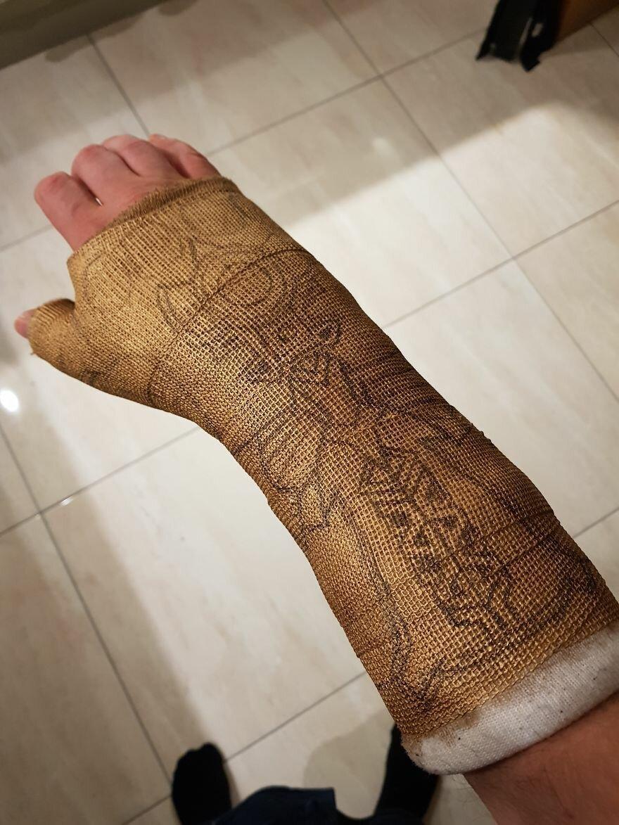 Мужчина превратил гипс на руке в Перчатку бесконечности