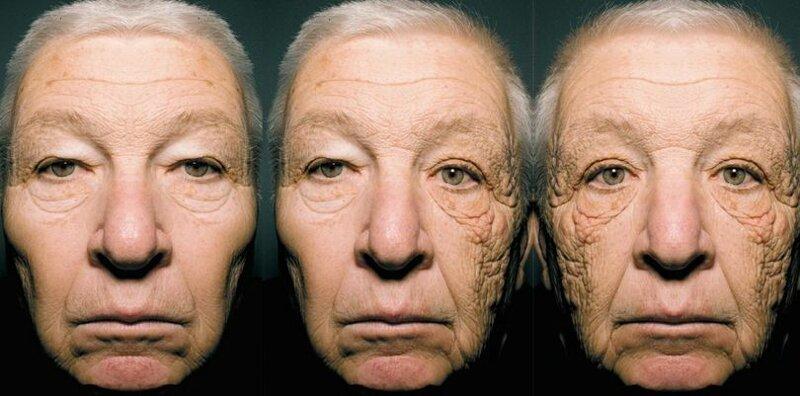 мужчины фотостарения кожи фото последние годы