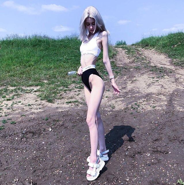 анорексия голые видео - 14