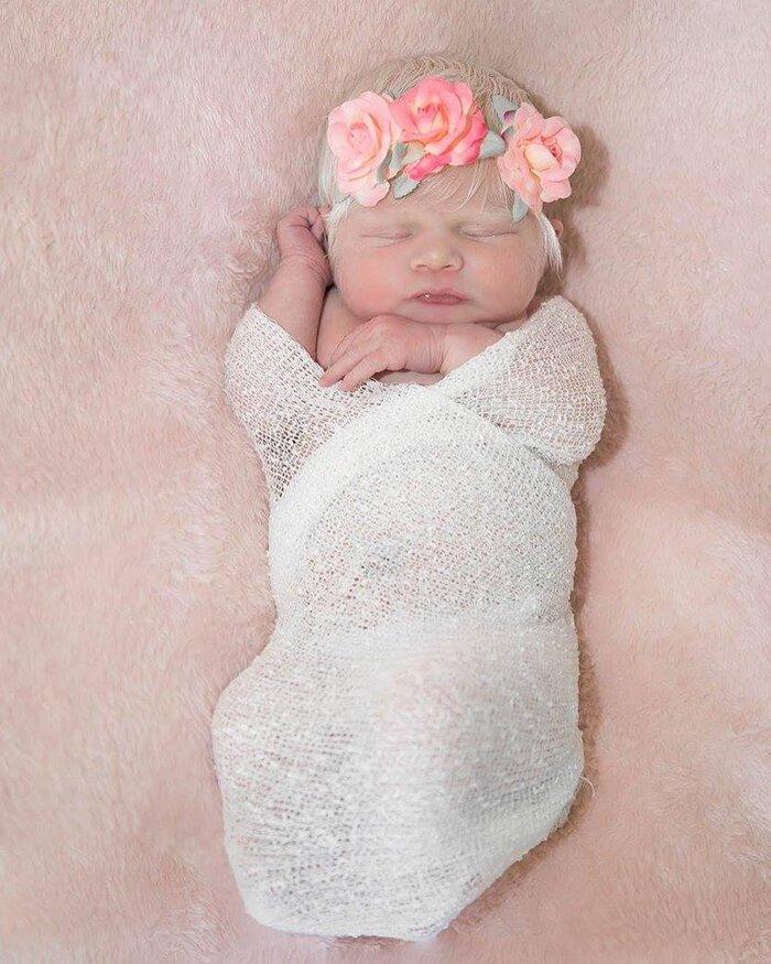 В семье латиноамериканцев родилась девочка-альбинос