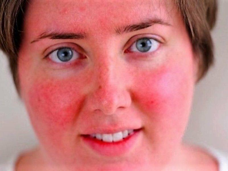 Внешние факторы, провоцирующие покраснение лица без температуры