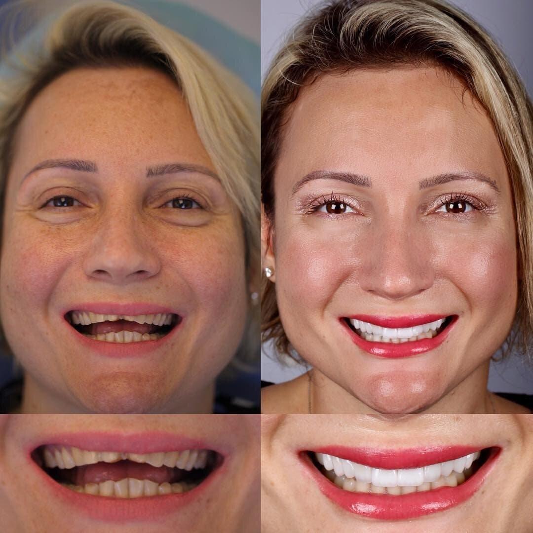 как в айфоне поправить зубы на фото стужа
