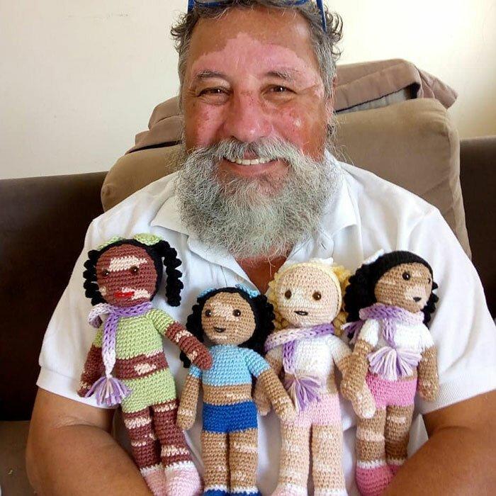 Дедушка с витилиго вяжет кукол для детей с таким же недугом