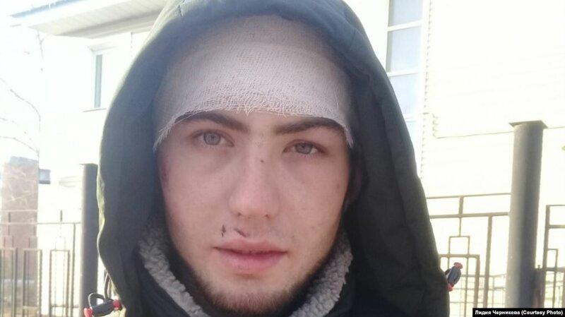 """Иркутский """"гаишник"""" сломал ногу, избивая пьяного водителя"""
