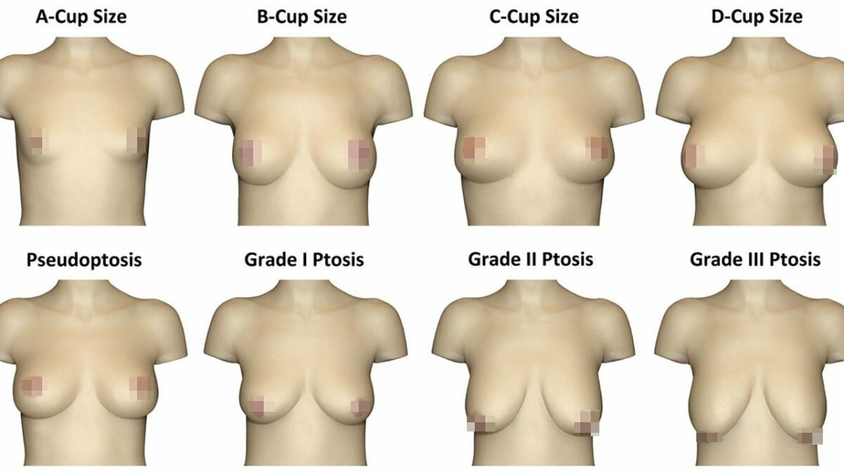 There are seven types of breast shape, lingerie brand claims